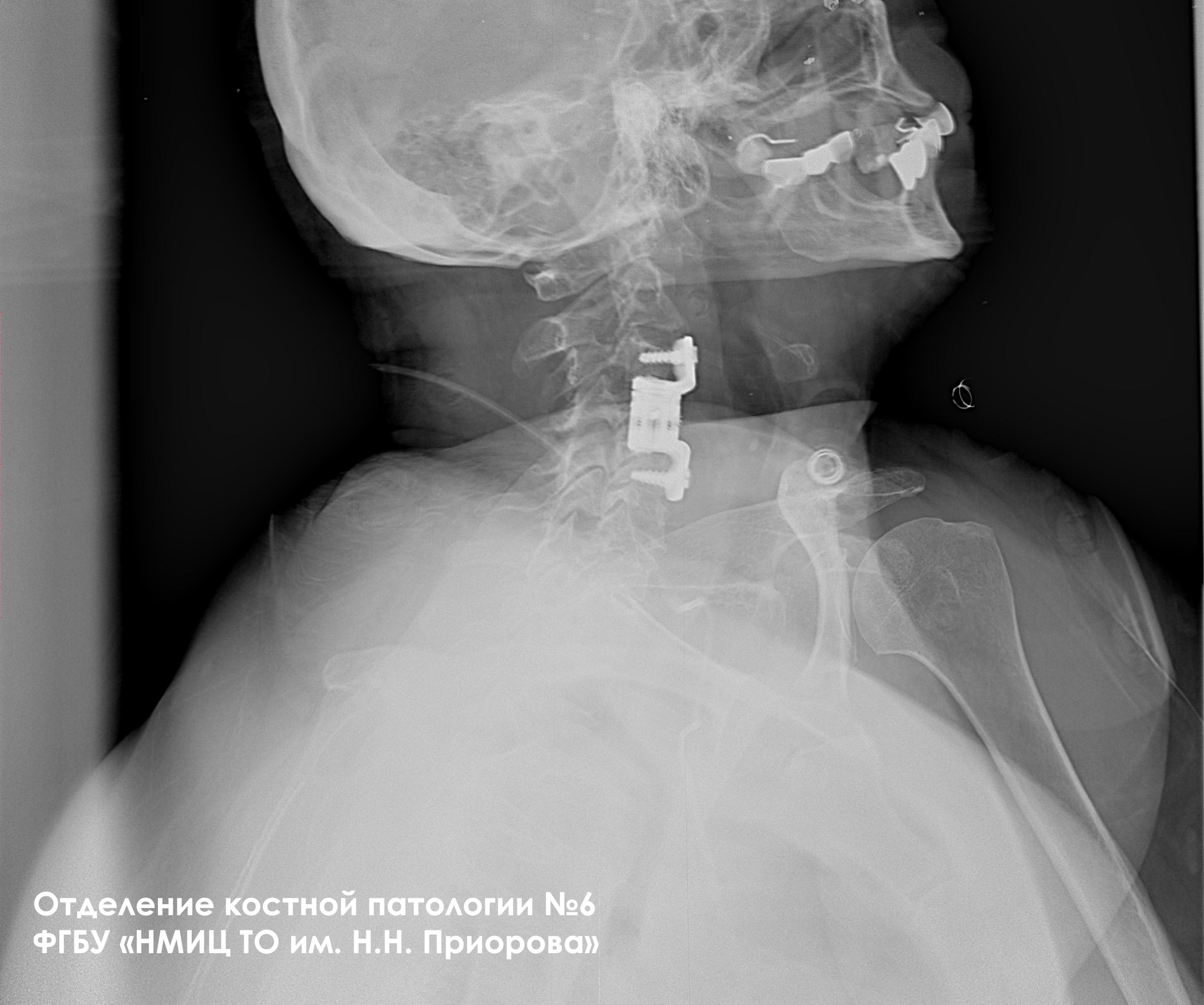 Эндопротезирование тел позвонков при опухолевом поражении