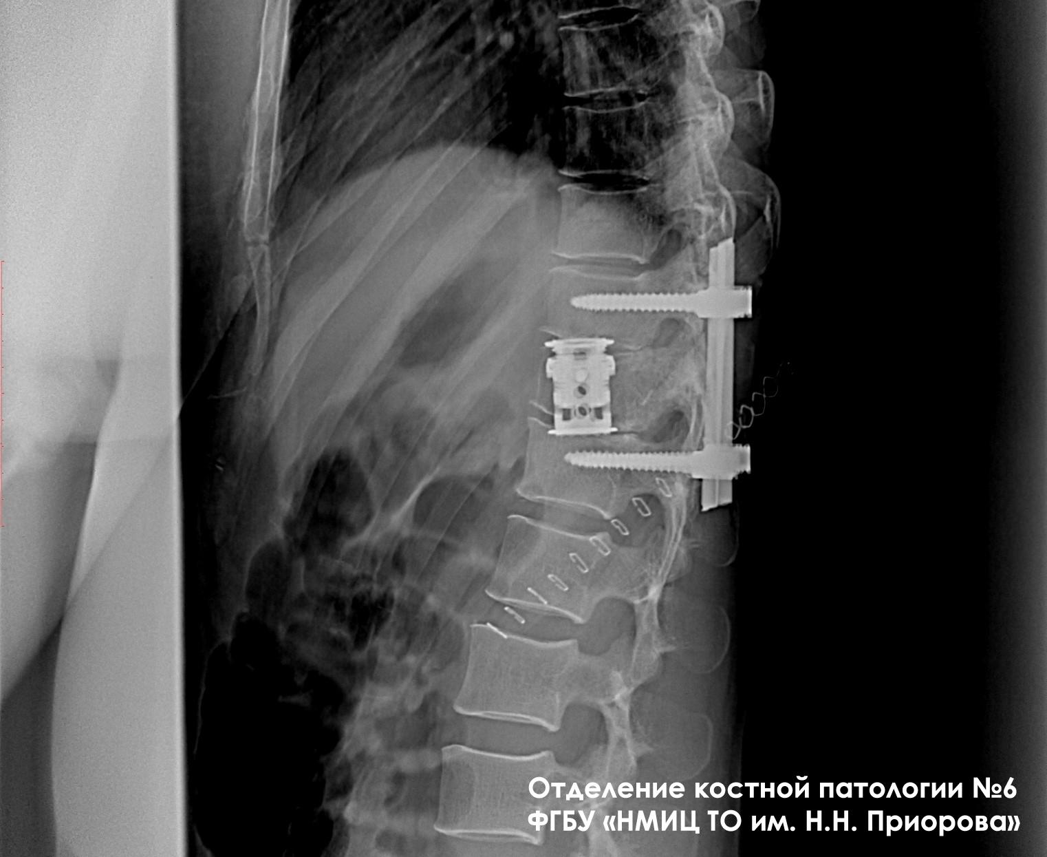 Эндопротезирование тел позвонков с задней стабилизацией при опухолевом поражении